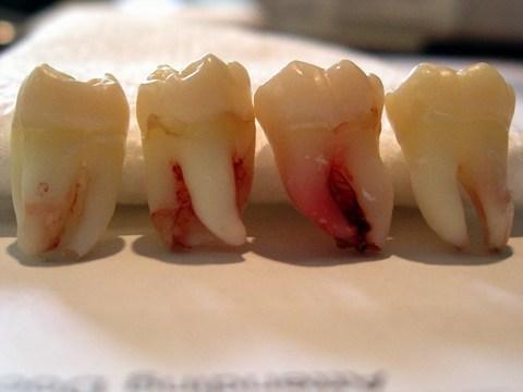 Wisdom-Tooth-Extraction