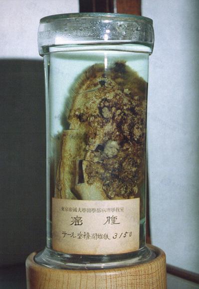 人工癌標本